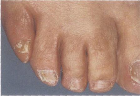 運動員灰指甲