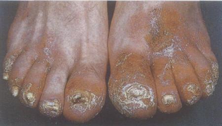 艾滋病患者灰指甲