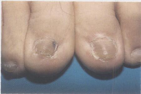 免疫抑制患者并发灰指甲