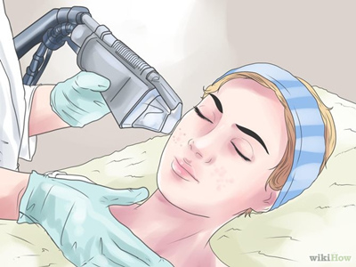 面部磨皮術