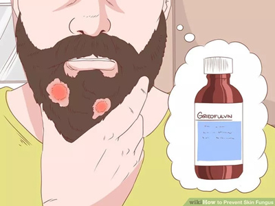 治疗头皮或胡须中的癣.jpg