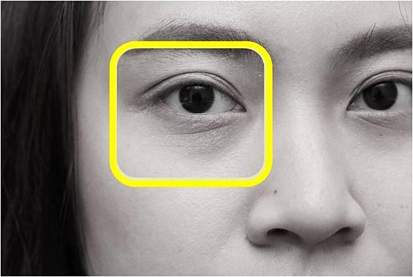 眼袋-4.jpg