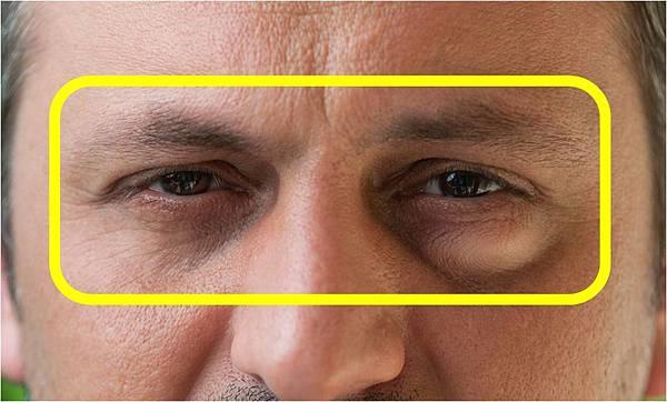 眼袋-2.jpg