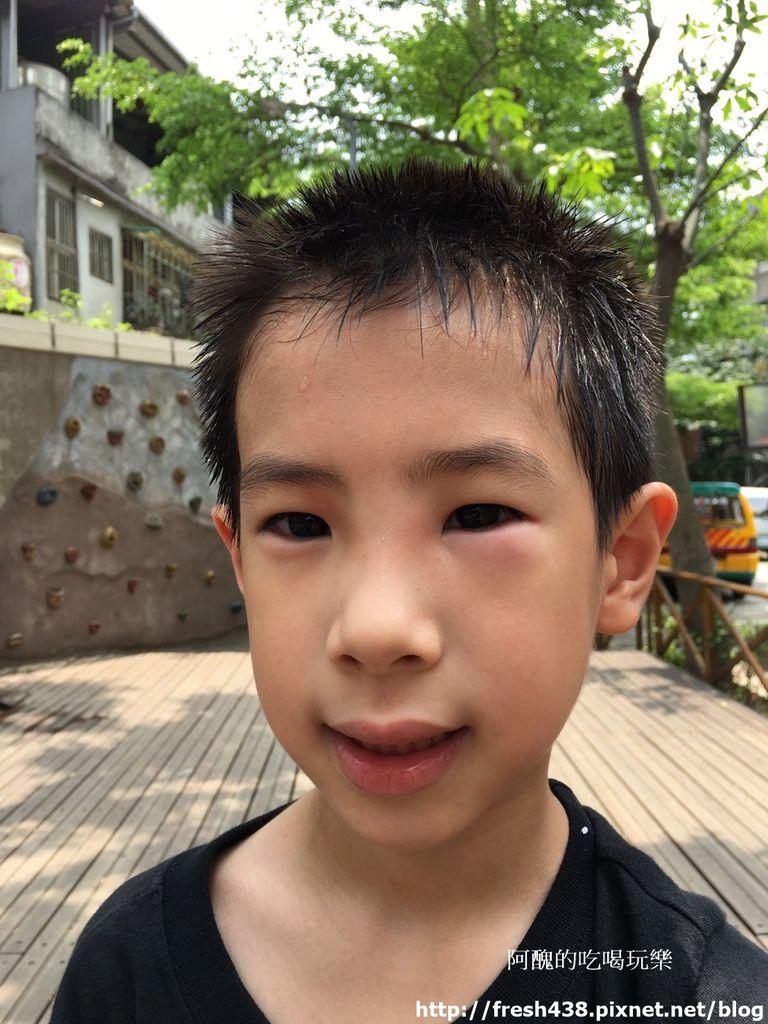 2017.5.3安安在牧人幼兒園活動被蚊蟲咬到眼睛