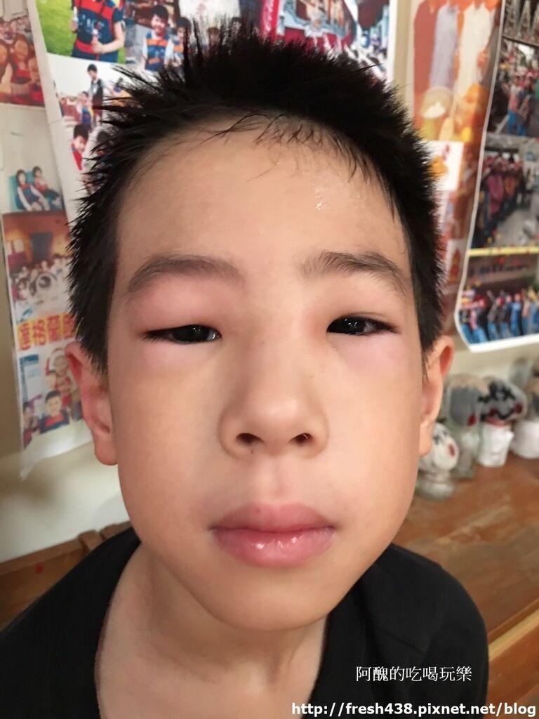 2017.5.3安安在牧人幼兒園活動被蚊蟲咬到眼睛,下午更腫