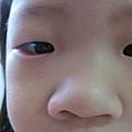 過敏性結膜炎