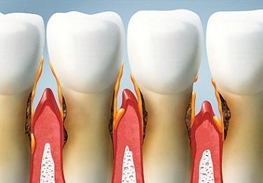牙齒(1).jpg