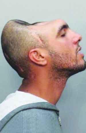 半腦犯人 25歲的英國囚犯照片絕無作假