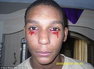 泣血男孩 英曼已接受過十五名醫師的診察,仍無法找出病因