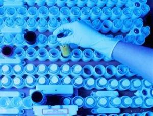 人體的12個極限 11.人體最多能夠承受多強的輻射?
