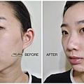 before & after TKLAB 小祕密青春露酵母精華™