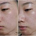 《森美肌》金盞花-舒緩調理潤膚水使用前後比較