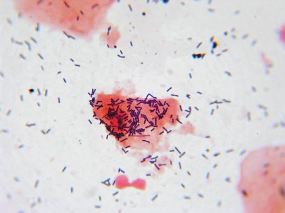 陰道乳酸桿菌