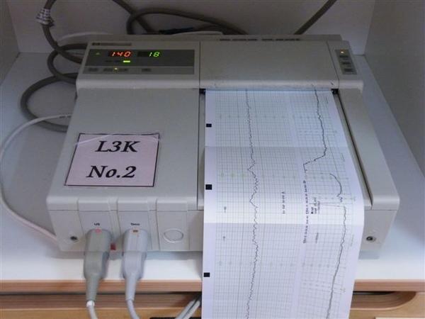 2.測胎兒心跳還有宮縮的機器