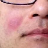 紅疹.jpg