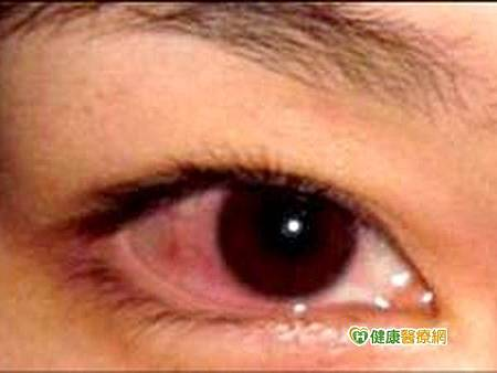 報載紅眼.jpg