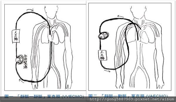 「veno-venous 葉克膜」的圖片搜尋結果