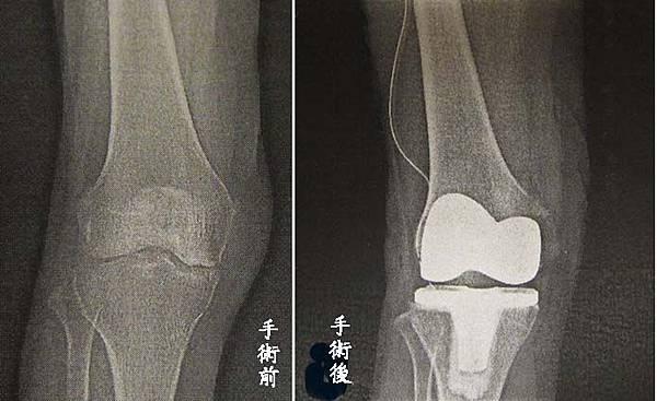 surgery6knee