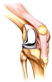 artificure knee.jpg