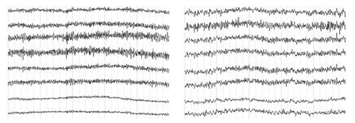 禪定腦電波出現顯著高頻gamma波