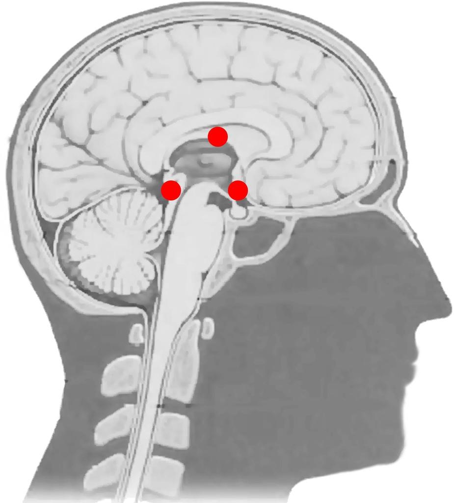 腦部三個脈輪 (禪心、法眼、智慧)