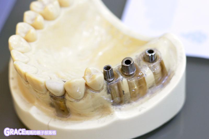 台北大安區-忠孝復興捷運站-推薦免費植牙諮詢分享-新華陀植牙藝術中心-自費蛀牙牙醫醫院診所-推薦牙醫-牙齒痛根管治療抽神經-裝假牙-植牙價格-關於牙齒保健飯後牙線清潔正確刷牙-親子部落客grace媽媽的親子部落格