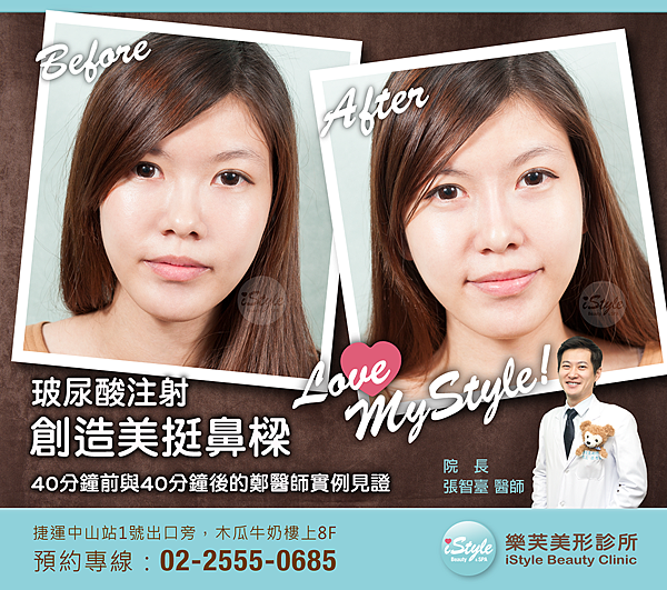 FB-玻尿酸(鼻梁)-鄭醫師-1017-02