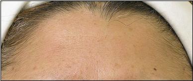 Hydrafacial_Forehead_A