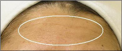 Hydrafacial_Forehead_B