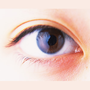 eyelid classification - 複製.jpg