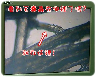 毛囊蟲治療_06-06_001.JPG