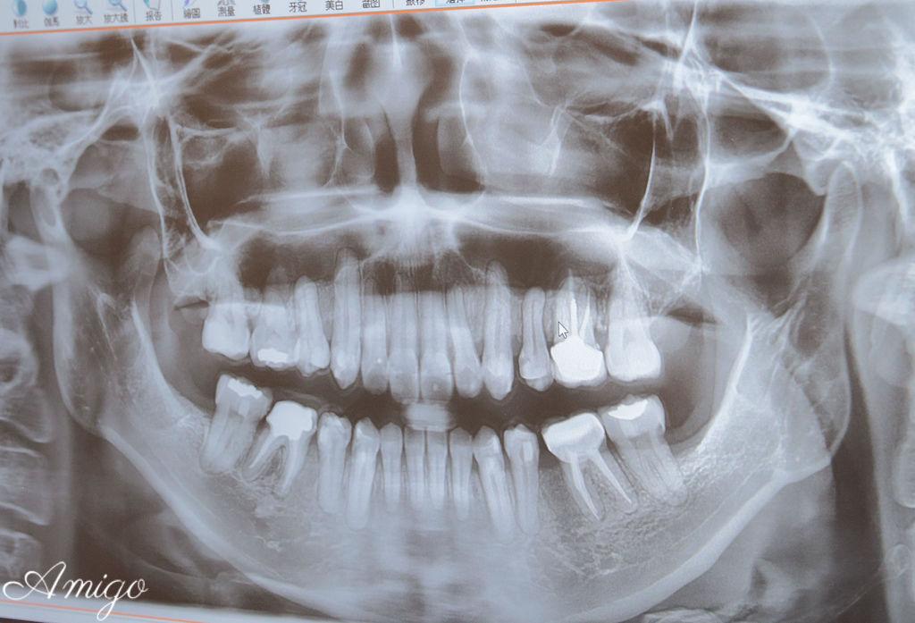 隱適美牙套日記,神奇傑克齒顎矯正專科診所