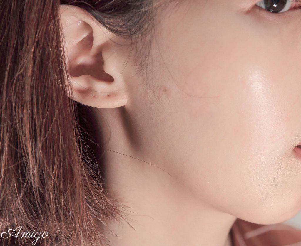 Acnes 抗菌痘痘貼