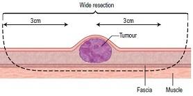 腫瘤切除2