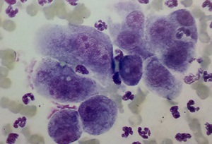 squamous cell carcinoma FNA