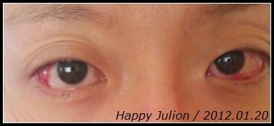 紅腫的雙眼