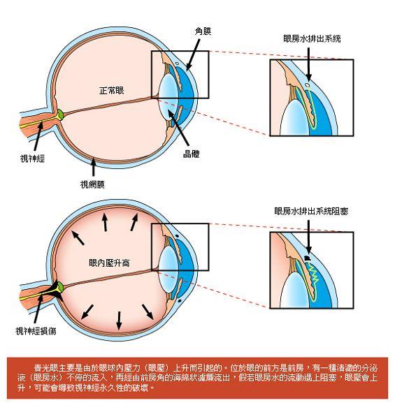 11_青光眼成因.jpg