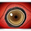 哈佛眼科_37_角膜潰瘍_將插畫把眼睛轉紅+角膜混濁表現.jpg