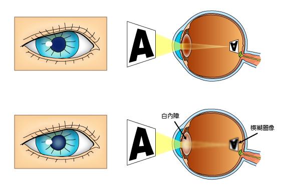 白內障造成視力的模糊