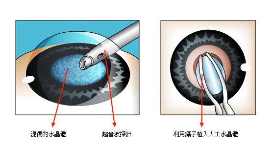 白內障手術1