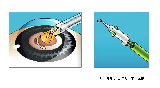 白內障手術2
