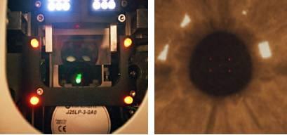 27-可在患者瞳孔上看見威視能黃色照明燈形成的方形區塊.jpg
