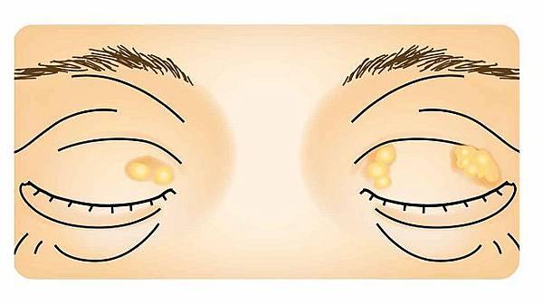 哈佛眼科_眼睛黃斑瘤2.jpg