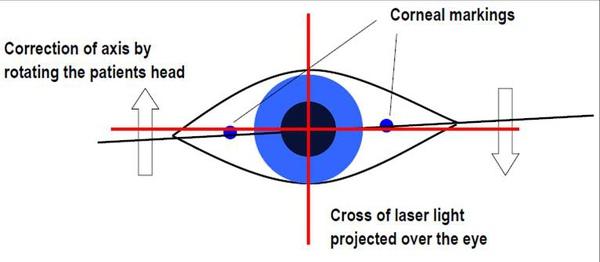 26-眼球自旋十字基準線.jpg