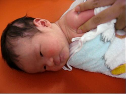 2009-08-12 baby 準備要打卡介苗了.JPG