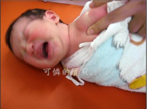 2009-08-12 baby 打卡介苗哭哭了.JPG