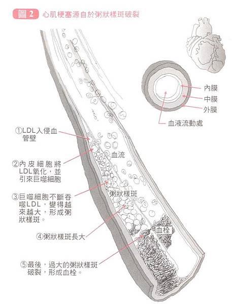 動脈粥狀圖.bmp