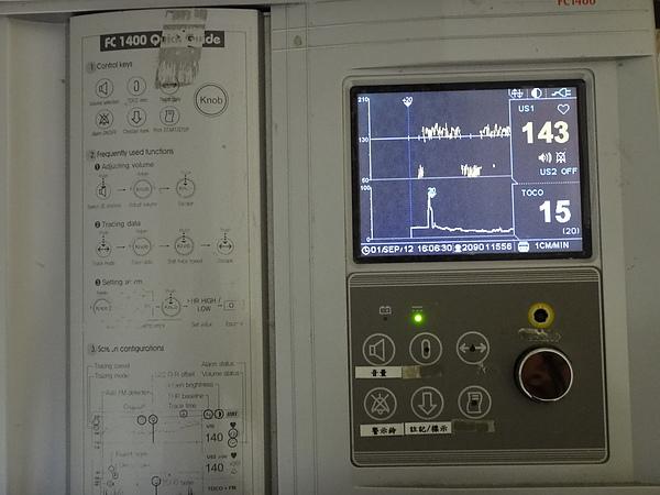測量寶寶心跳和宮縮頻率.JPG