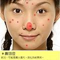 鼻頭痘.jpg