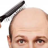 天天洗頭會禿頭?7大掉髮迷思報你知